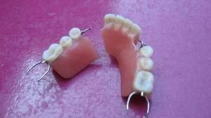 reparación prótesis dental domicilio viña- valparaíso- stgo