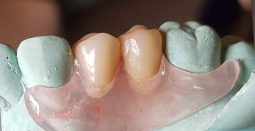 reparacion protesis dental nuevas flexibles acrilc.avellaned