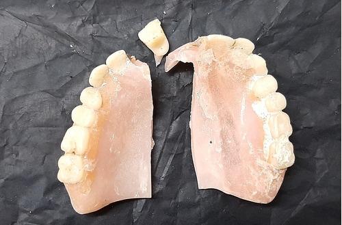 reparacion protesis dentales laboratorio