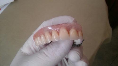 reparamos protesis dentales