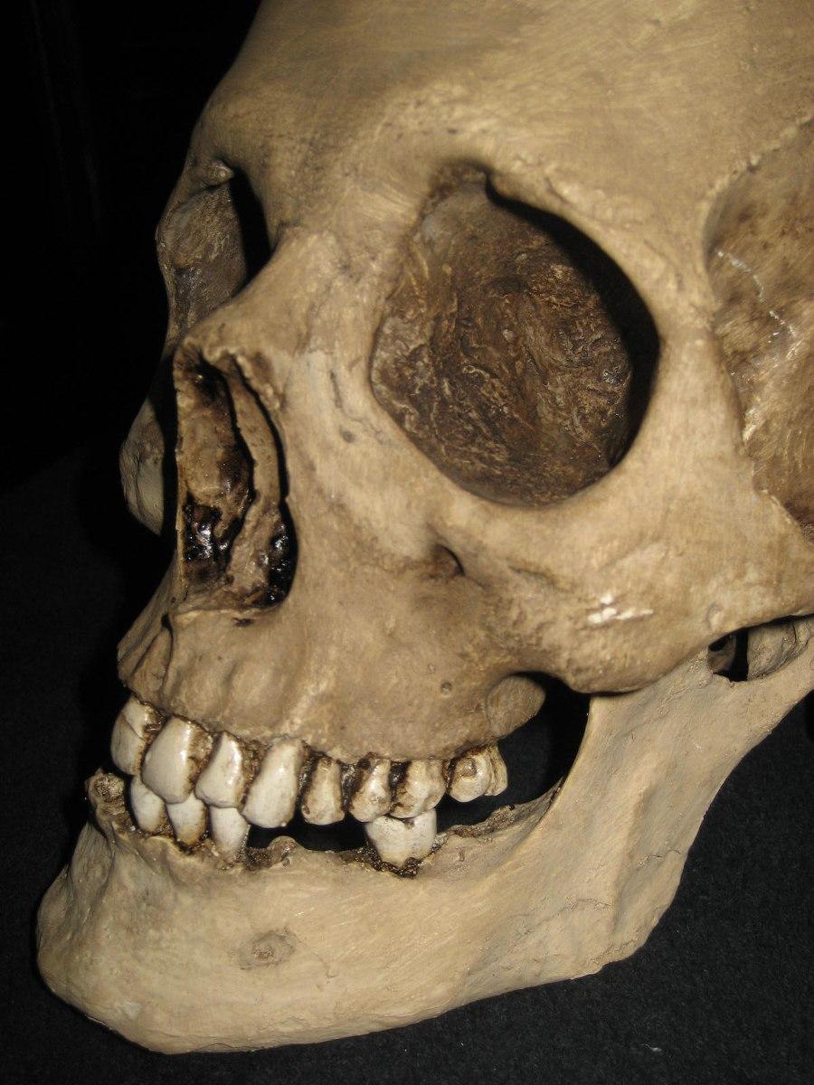 Encantador Cráneo De La Anatomía Humana Regalo - Anatomía de Las ...