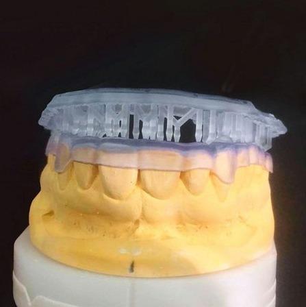 resina 3d - cosmos - splint - placas miorrelaxantes - yller