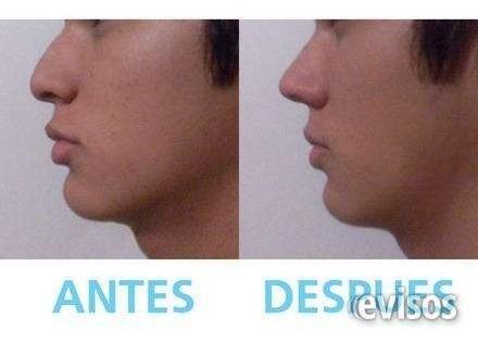 respingador nasal corrector de nariz 3 pares 1 ch, 1 m y 1 l