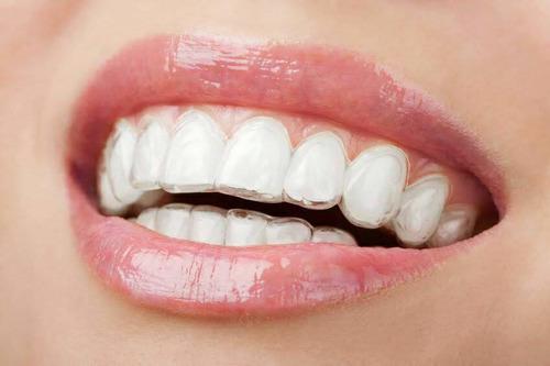 retenedores dentales medellin