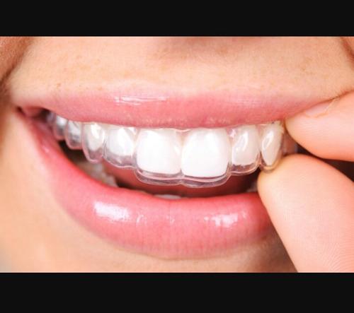 retenedores para ortodoncia