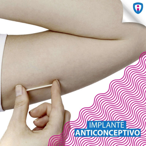 retiro de implante anticonceptivo