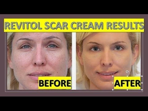 Revitol Scar Cream Elimina Cicatrices De Acne Cirugias 59ml S