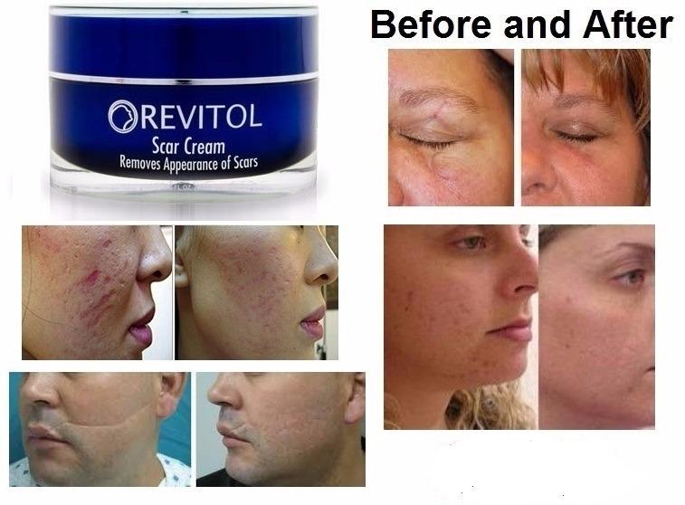 Revitol Scar Cream Elimina Cicatrices De Acne Cirugias S 179