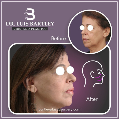 ritidoplastia, ritidectomía o lifting facial dr luis bartley