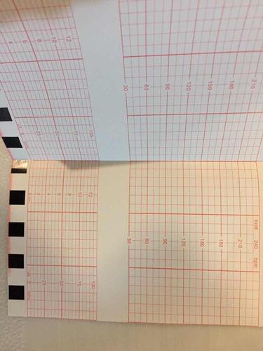 rollo de papel electrocardiograma de 21 cm x 30 metros