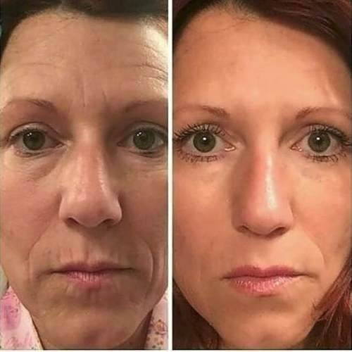 rosto rugas  ageless beauty face nos olhos cremes 20un fa3