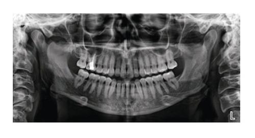 rx panorámico dental planmeca / vatech / servicio_tecnico