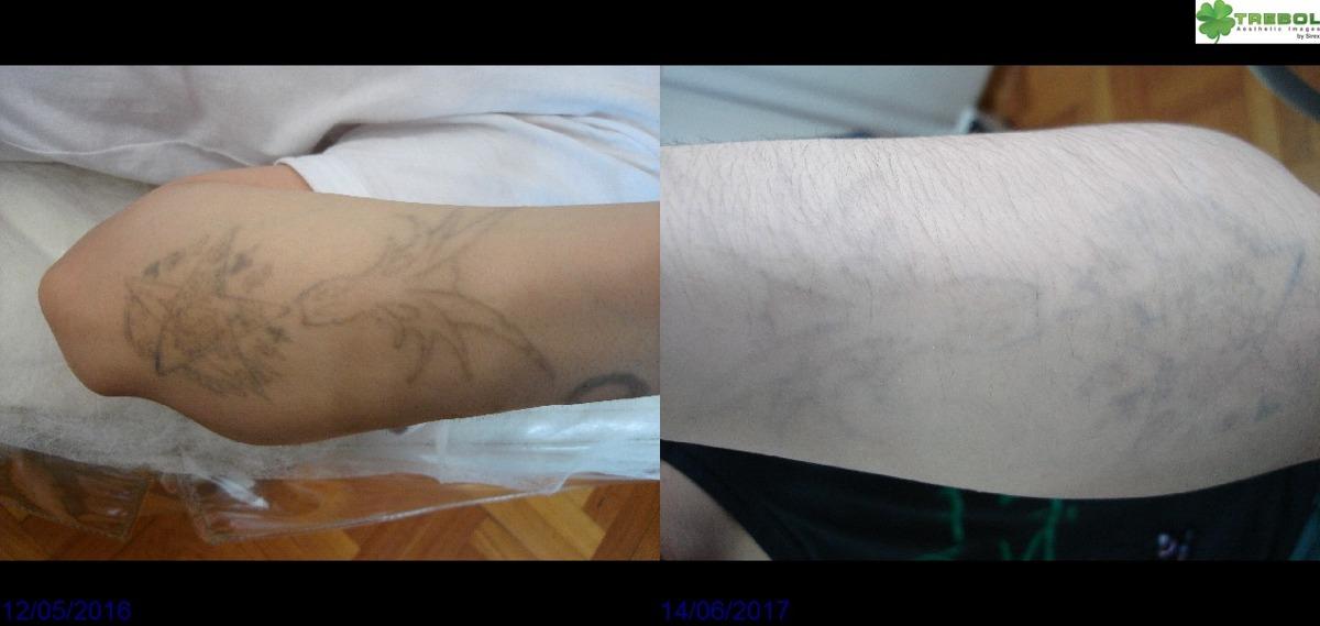 Sacar Quitar Eliminar Borrar Remoción Tatuajes Con Láser 1000