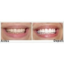 Seringa Clareamento Dental Whiteness Perfect 22 R 26 00 Em