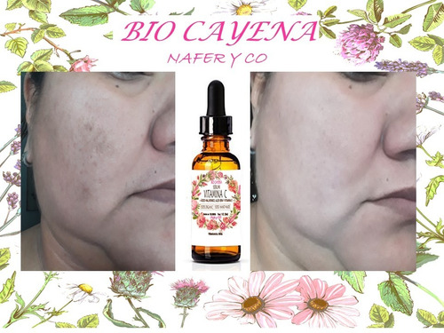 serum vitamina c al 25% con acido hialuronico/50ml/antimanch