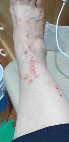 servicio de fumigación y exterminio de plagas