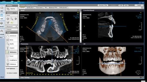 servicio de panorámica, cefalica, tomografía volumétrica 3d