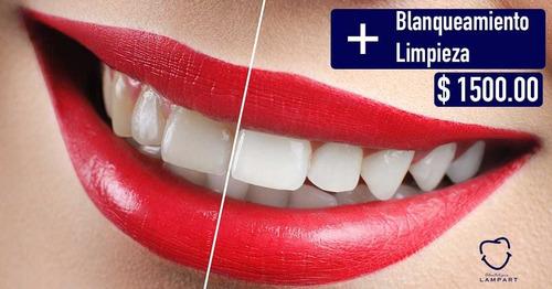 servicio dental odontologíco lampart