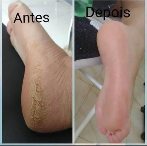 serviço completo de spa dos pés+ manicure+pedicure