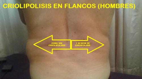 sesion de criolipolisis