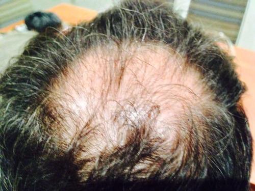 shampoo y revitalizador seber para problemas capilares.