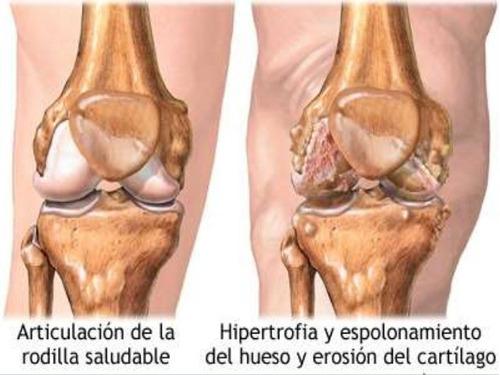 shark catilage cartilago tiburon homeopat - kg a $1