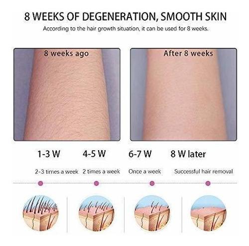 sistema de depilacion ipl permanente para mujeres y hombres
