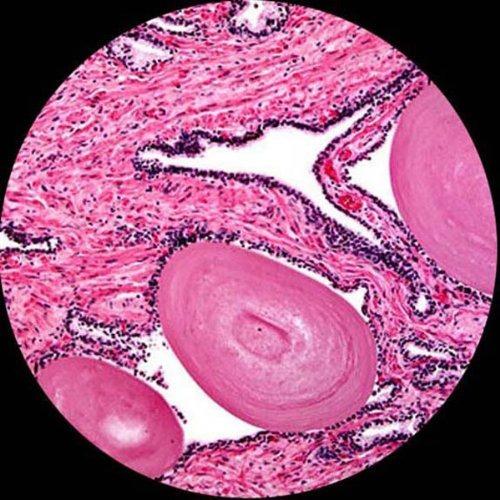 sistema de diapositivas para microscopio preparado amscope p