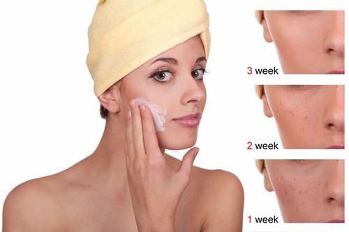 skinbooster whitening emulsion blanqueadora lidherma