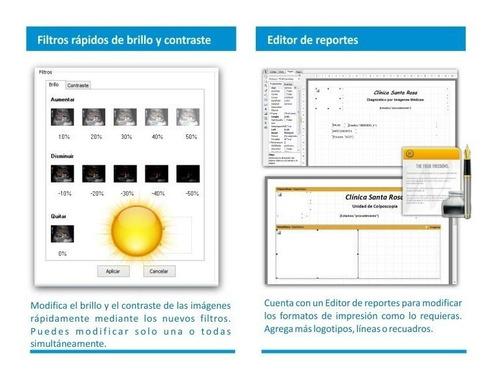software colposcopia y usg elite + pedal