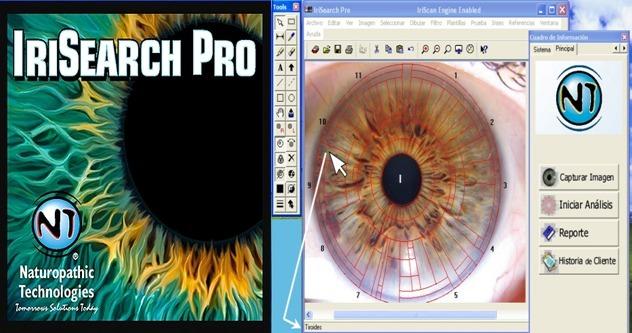software iridologia