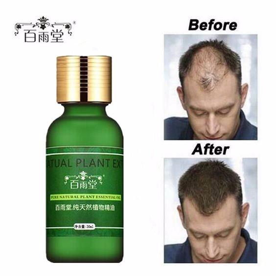para queda de cabelo