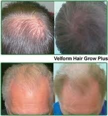 stop calvicie volvio power grow comb cepillo lacer delivery