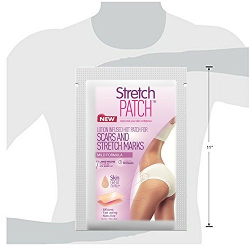 stretchpatch mild formula, hot lotion infused