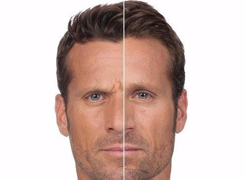 suero facial efecto botox antiarrugas serum rostro antiedad