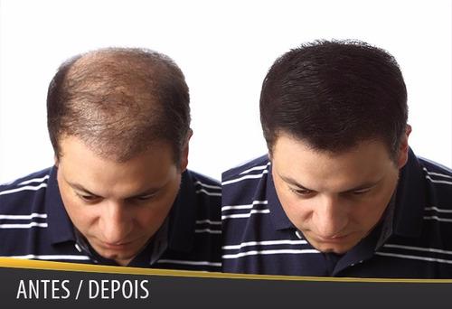 super billion hair - queratina em pó - disfarça calvície 8g