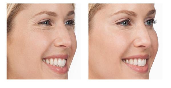 Supercreme Clarear A Pele Lift Up Facial Diurno R 1 600 00 Em