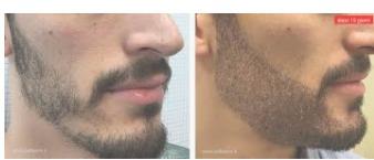 talika hundú crece barba,cabello,cejas,pestañas