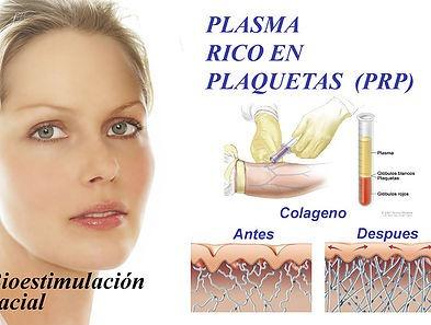taller corto de plasma rico en plaquetas te divina