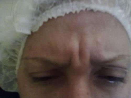 taller on line mesoterapia facial