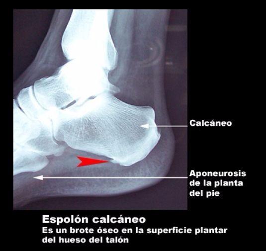 Talonera O Plantillas De Gel Ortopedicas Para Espolon