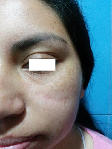 tatuajes depilacion lunares cicatrices eliminacion laser