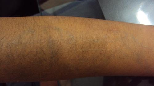 tatuajes lunares cicatrices  depilacion eliminacion laser