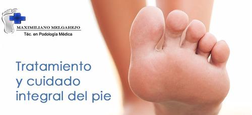 téc. en podología médica- podólogo- domicilios a montevideo
