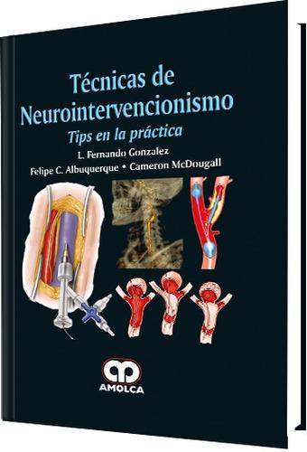 técnicas de neurointervencionismo