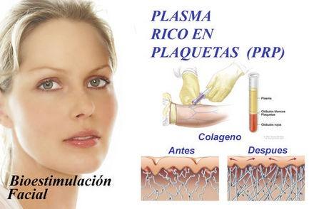 terapia de revitalización facial - plasma rico en plaquetas