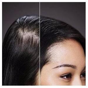 toppik fibras naturales 27.5g alopecia (4x3) envio gratis
