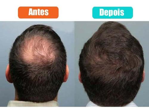 toppik - queratina em pó toppik hair castanho médio 27.5g