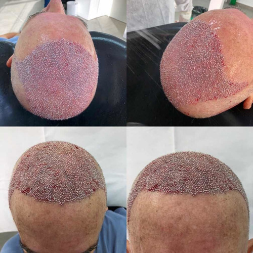 transplante capilar técnica fue 45-998308000 mais informacoe