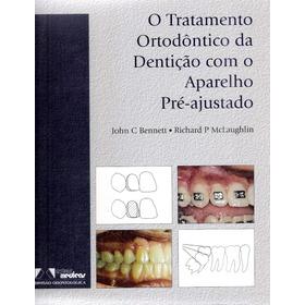 Tratamento Ortodontico Da Denticao Com Aparelho Pre Ajustado